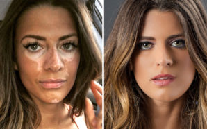 former model Breanne Rice coming clean about living with the rare skin condition, vitiligo (she was diagnosed at 19)